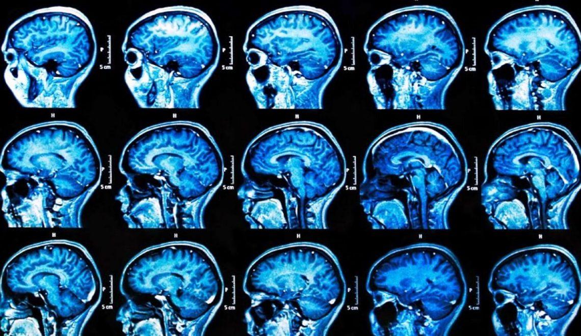 Uçuk Virüsü Alzheimer'a Yol Açıyor
