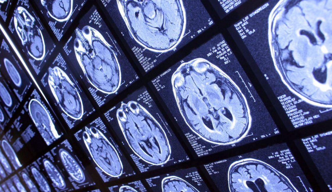 Parkinson'a Yeni Tedavi